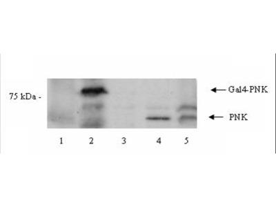 Anti-PNK Antibody
