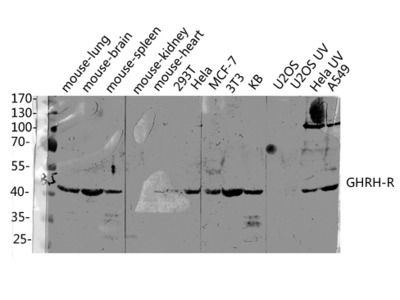 Anti-GHRH-R Antibody