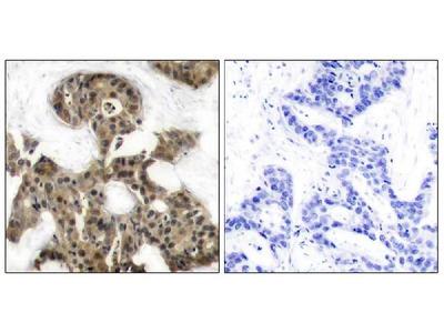 Anti-4E-BP1(Ab-45) Antibody