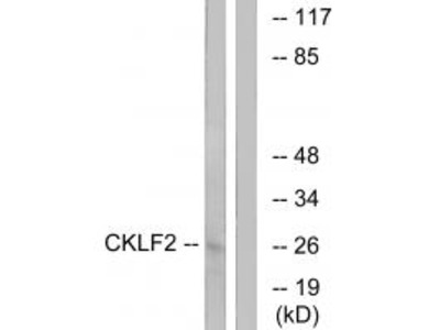 Anti-CKLF2 Antibody