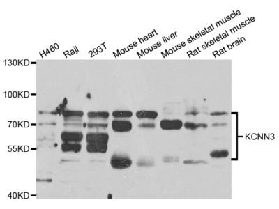 Anti-Chloride channel protein 2 CLCN2 Antibody