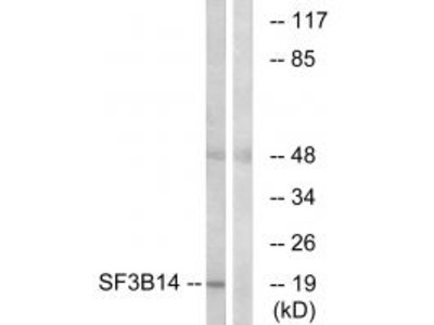 Anti-SF3B14 SF3B6 Antibody