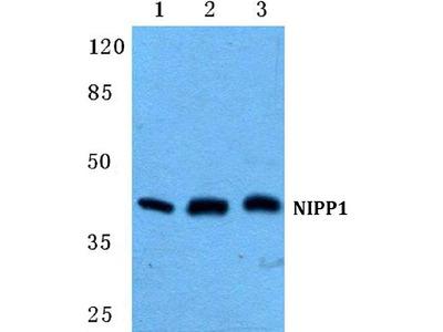 Anti-NIPP1 PPP1R8 Antibody