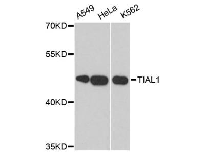 Anti-Nucleolysin TIAR TIAL1 Antibody