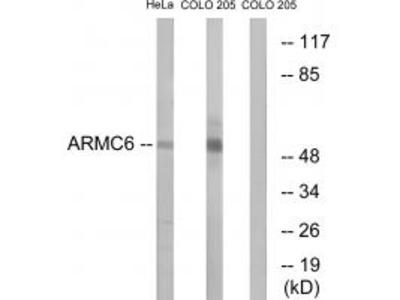 Anti-ARMC6 Antibody