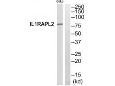 Anti-IL1RAPL2/Il 1R9 Antibody