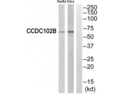 Anti-CCDC102B Antibody