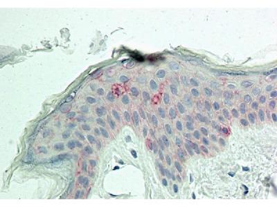 Anti-MITF Antibody (Monoclonal, ABM1H91)
