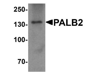 Anti-Partner and localizer of BRCA2 PALB2 Antibody