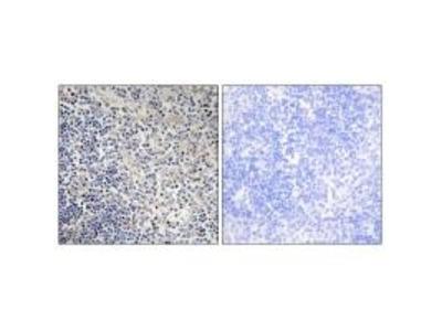 Anti-TPIP1 Antibody