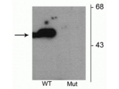 Anti-Phospho-Parkin (Ser101) Antibody