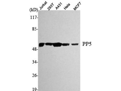 Anti-PP5 PPP5C Monoclonal Antibody