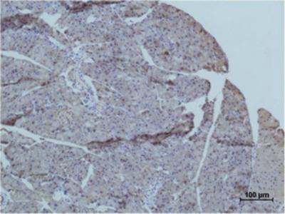 Anti-TRIM72 Antibody