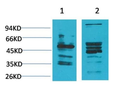 Anti-NMBR/Neuromedin B R Antibody