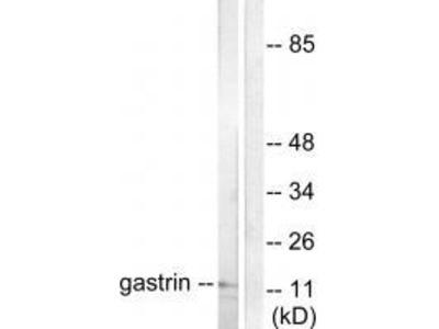 Anti-Gastrin Antibody