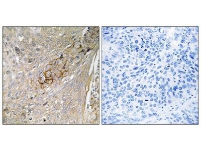Anti-TAUT SLC6A6 Antibody