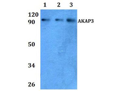Anti-A-kinase anchor protein 3 AKAP3 Antibody