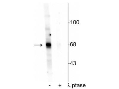 Anti-Phospho-AKT (Thr342) Antibody