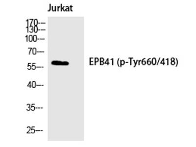Anti-Phospho-4.1R (Tyr660) Polyclonal Antibody