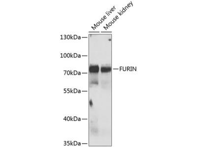 Anti-FURIN Antibody
