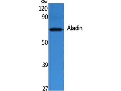 Anti-Aladin AAAS Antibody