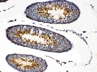 Anti-Protein Kinase A regulatory subunit I alpha/PRKAR1A Picoband Antibody