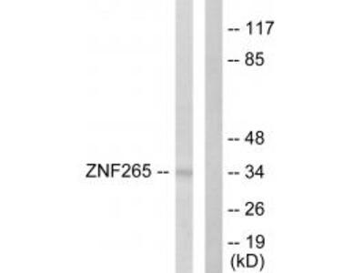 Anti-ZNF265 Antibody