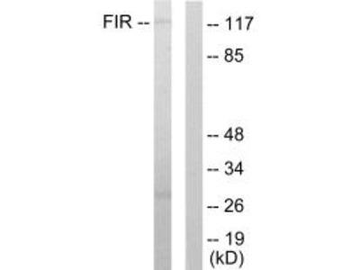 Anti-FIR FARP2 Antibody