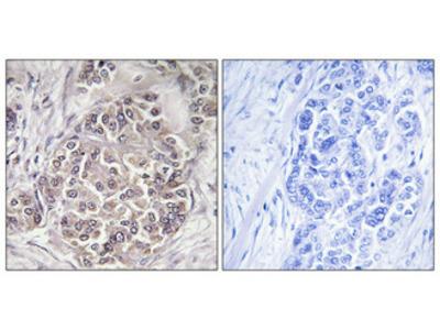Anti-Peroxin 1 PEX1 Antibody