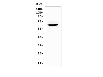 Anti-Heparanase 1/Hpse Antibody Picoband