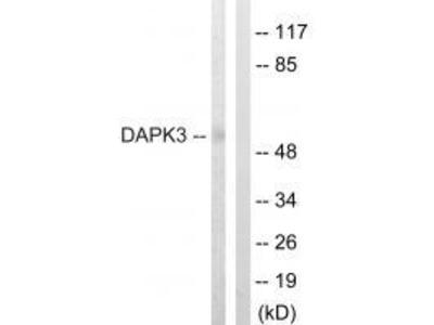 Anti-DAPK3 (Ab-265) Antibody