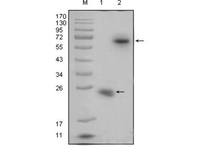 Anti-R-Spondin Monoclonal Antibody
