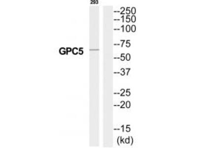 Anti-GPC5/Glypican 5 Antibody