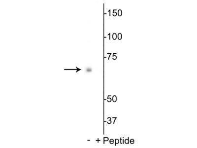 Anti-Phospho-p70 S6K (Thr398) Antibody