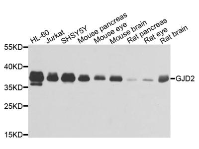 Anti-C-C motif chemokine 3-like 1 CCL3L1 Antibody