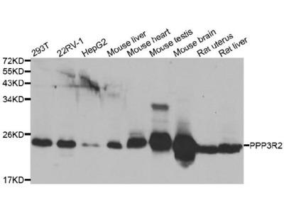 Anti-Calcineurin subunit B type 2 PPP3R2 Antibody