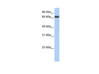 Anti-ZDH17 ZDHHC17 Antibody