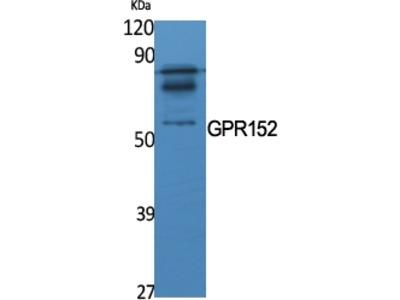 Anti-GPR152 Antibody
