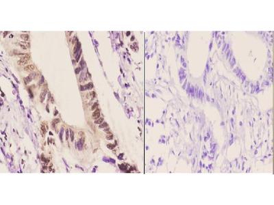 Anti-Per3 (P2) Antibody