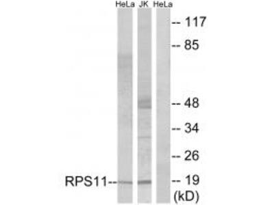 Anti-RPS11 Antibody