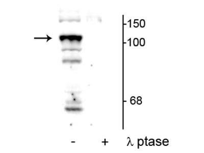 Anti-Phospho-Protein Tyrosine Phosphatase H1 (PTPH1)(Ser459) Antibody