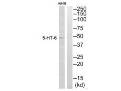 Anti-5-HT-6 Antibody