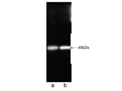 Anti-Proteasome 19S ATPase Subunit Rpt6 Antibody (Monoclonal, P45-110)