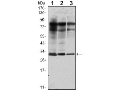 Anti-Rab 25 Monoclonal Antibody