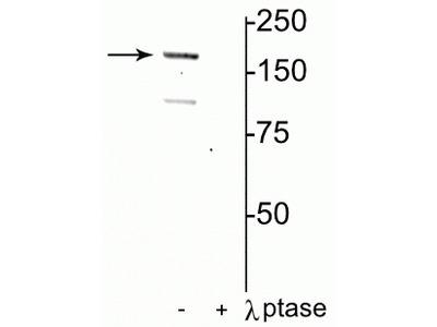 Anti-Phospho-NMDA Receptor NR2A Subunit (Tyr1325) GRIN2A Antibody