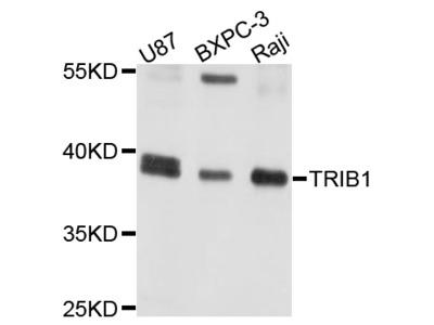 Anti-Tribbles homolog 1 TRIB1 Antibody