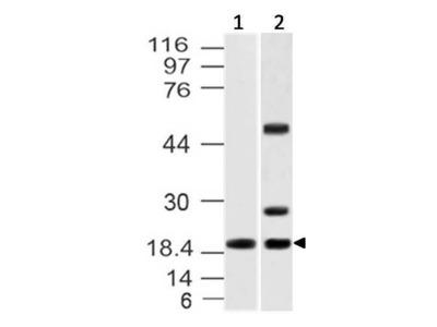 Anti-IL-37 Antibody