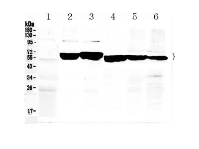 Anti-Cytokeratin 8/KRT8 Antibody Picoband
