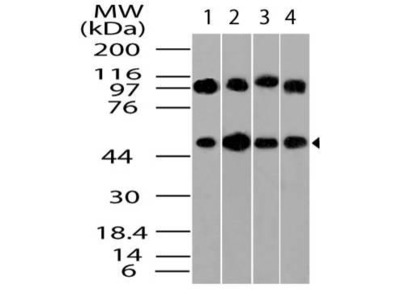 Anti-Beta Tubulin Antibody