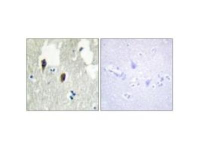 Anti-KLHL3 Antibody